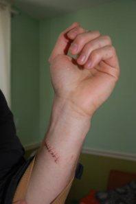 cut_wrist_closeup